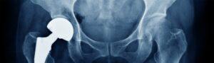 Depuy ASR Hip Implant